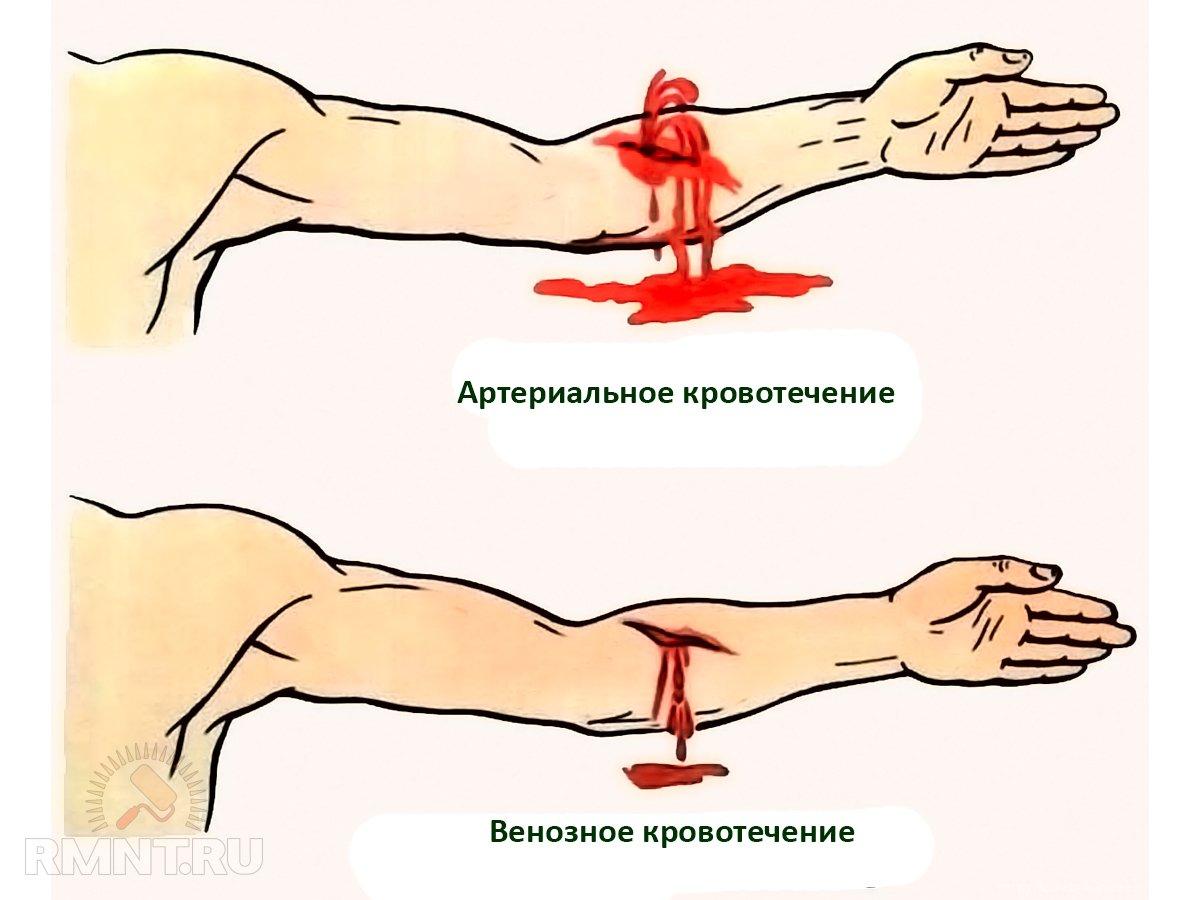 Правила оказания первой помощи при травмах